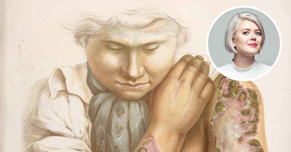 Ei natt med Venus, eit liv med Merkur.Ellen Støkken Dahl om syfilisen si historie i Noreg